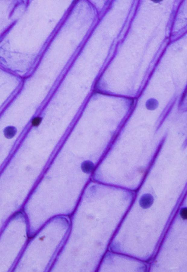 Purple onion peel under the microscope